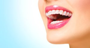 Common braces by Damascus Dental Group