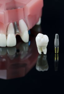 Dental implants at Damascus Dental Group