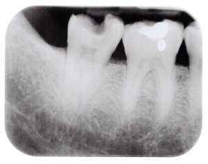 Root canal procedure at Damascus Dental Group